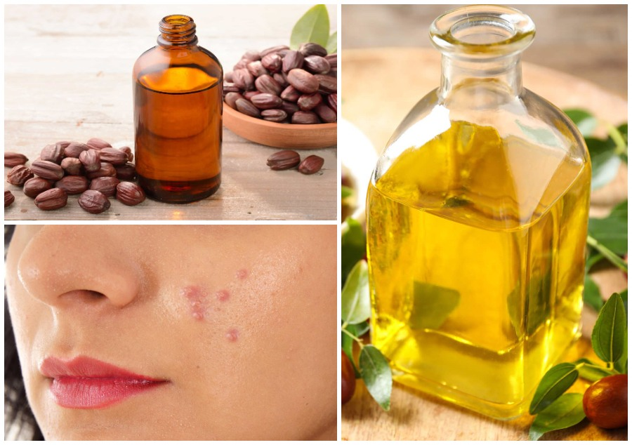 jojoba oil acne